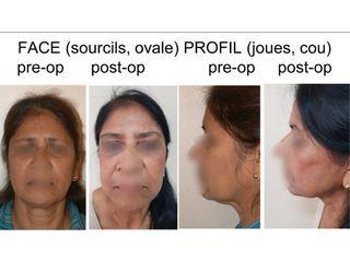 Avant après lifting fronto-cervico-facial par fils tenseurs