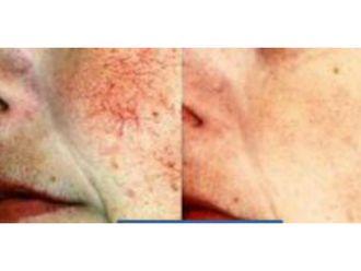 Laser dermatologique-555492