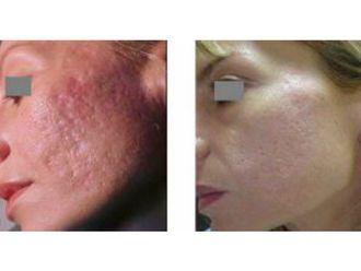Laser dermatologique-555493