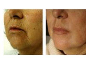 Laser dermatologique-555494