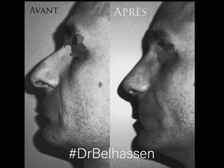 dr_belhassen_image1