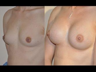 Augmentation mammaire - 604449