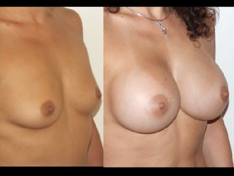 Augmentation mammaire - 604453
