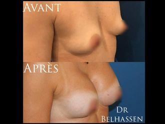Augmentation mammaire - 628027