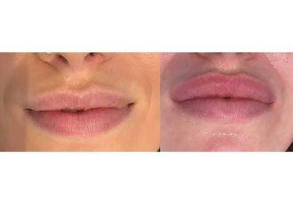 Augmentation des lèvres-629785