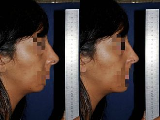 Chirurgie Esthétique-629845