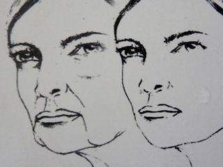 Effet du vieillissement du visage avec formation des bajoues, des cernes et des sillons nasogéniens
