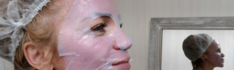Masque hydratant post microneedling
