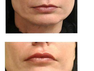 Augmentation des lèvres-614396