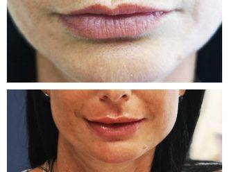 Augmentation des lèvres-741862