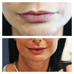 Augmentation des lèvres - Dr Catherine Pannacci - Mandelieu Esthétique