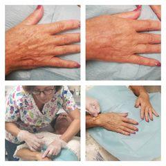 Taches pigmentaires - Dr Catherine Pannacci - Mandelieu Esthétique