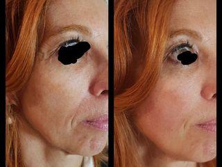 Aavant après Acide hyaluronique - anti aging