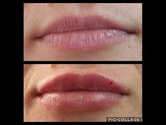 Augmentation des lèvres-660570