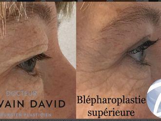 Blépharoplastie-623318