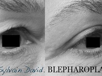 Blépharoplastie-623321