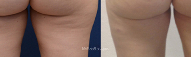LIPOSUCCION CULOTTE DE CHEVAL