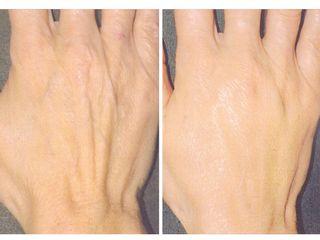 Avant après Acide hyaluronique pour des mains repulpées