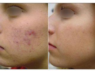 Avant après Traitement de l'acné par laser