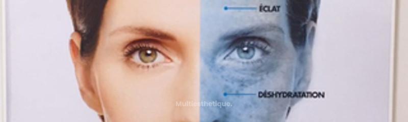 Skinscope