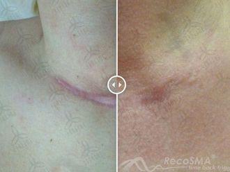 Traitement cicatrice-608374