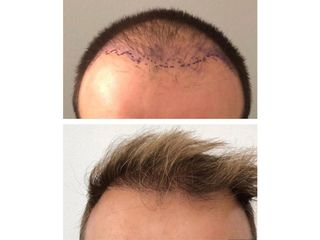 Avant après implants capillaires