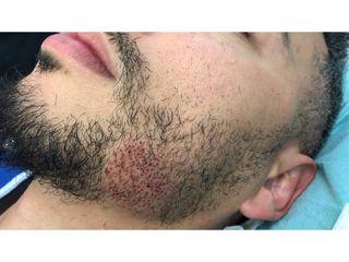 Avant implants barbe