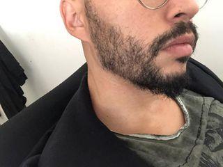 Après implants barbe