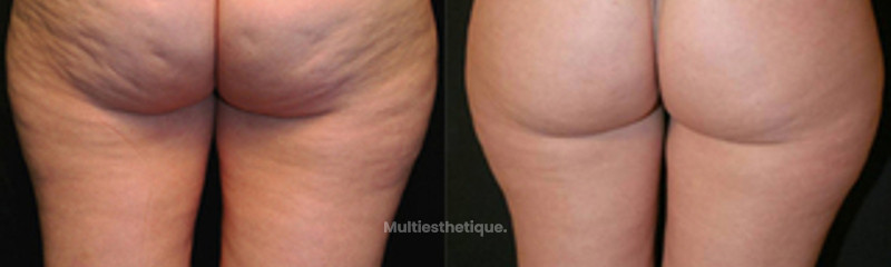 Traitement anti-cellulite