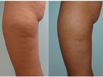 Traitement anti-cellulite-545635