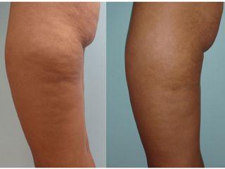 Avant après Traitement anti-cellulite