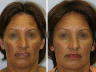Avant après traitement des taches pigmentaires
