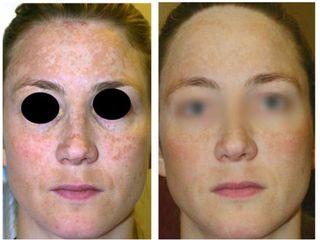 Avant après traitement des taches brunes