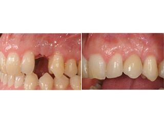 Avant après Implantologie dentaire