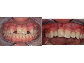 Avant après Prothèse dentaire