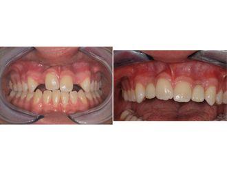 Chirurgie maxillo-faciale - 543643