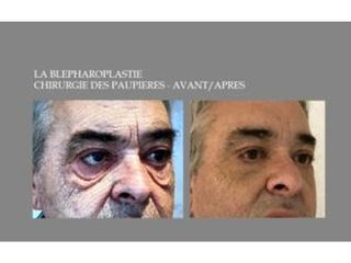 Avant après Blepharoplastie