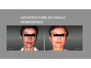 Avant après Lipostructure du visage