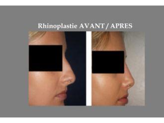 Rhinoplastie-639249