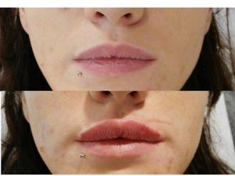 Augmentation des lèvres-531522