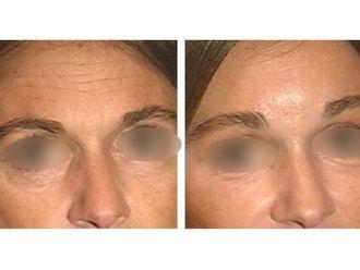 Botox-475722