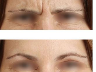 Botox-475728
