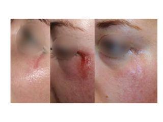 Cicatrice
