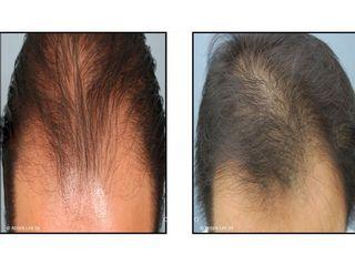 Avant après PRP cheveux