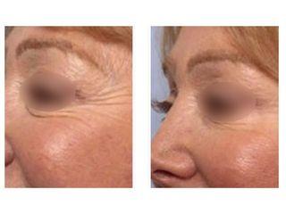 Avant après Injections de Botox