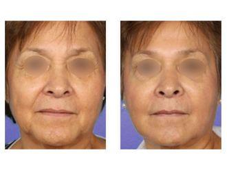 Botox-475747