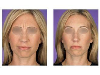 Botox-475748