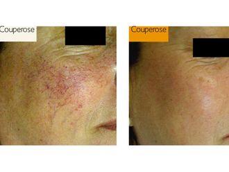 Couperose - 475753