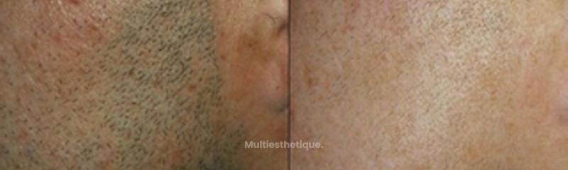 Épilation barbe