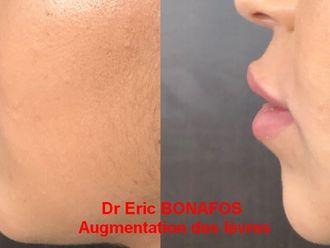 Augmentation des lèvres-738719